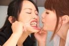 フェチ:レズ:開口器歯舐めレズ