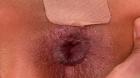 フェチ:レズ:アナル拡張尻穴絶頂レズビアン 小春 久我かのん