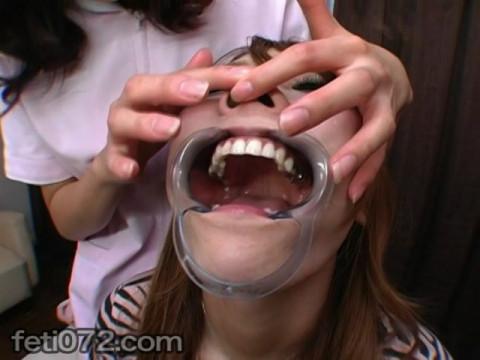 フェチ:レズ:歯科医院からの顔面いじりレズ