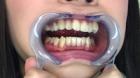 フェチ:レズ:歯観察
