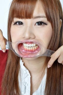 【歯観察】 こんなにカワイイのに前歯6本インプラント!しかも虫歯もちらほら。かなり恥ずかしそうです  長谷川しず く(21)