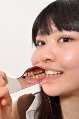 【今井花菜チャンの可憐なワンポイント銀歯】 カフェで働く花菜ちゃん。歯を見せることに緊張しまくり!2年ほど歯医者に行ってない口内はいかがなものでしょう?口を大き開けてくれないので、開口器で丸見えにしてみました!