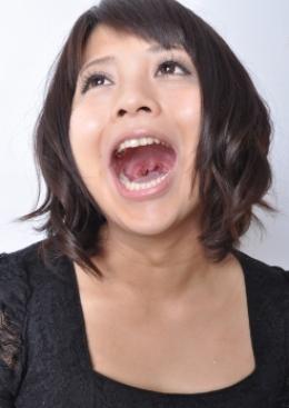 【のどちんこ観察】 ちょっと腫れたノド奥。そしてとても上手にのどちんこを見せてくれる郁ちゃんです。  桜木郁