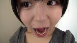 フェチ:レズ:武藤つぐみちゃんの歯・口内自撮り