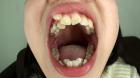 フェチ:レズ:素人娘かなこちゃんの舌・口内自撮り