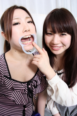 【歯観察レズ】 「ひよりの口見せて~」「くさーい」カワイイ顔して銀歯がいっぱいのひよりちゃん。はるかちゃんに銀歯の数を数えられたり、歯磨きされたり。舐めてキレイにしてもらってます。 成宮ひより/千星はるか