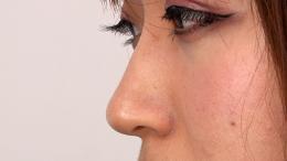 フェチ:レズ:鼻観察・くしゃみ鼻水 松本寧々