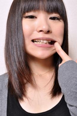 【歯観察】 ロリ娘の柚奈ちゃん。1本の大きめインレーが光ります  安達柚奈 (23)