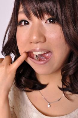【歯観察】 4本のインレー  仲間智美 (27)