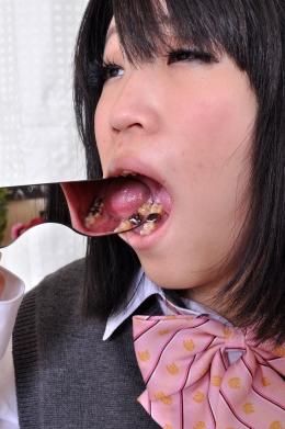 【歯観察】 あっけらかんと銀歯を見せてくれる女子校生。虫歯になりやすいのか、クラウンとインレーどっざり!  玉森ななみ