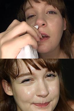 【鼻観察 くしゃみ・鼻水 ルロア・クララ】 欧州美少女ルロア・クララの高く美しい鼻をじっくり観察。恥ずかしがるリアクションがとても可愛らしいです。こよりでくしゃみしてたらーんと垂れる鼻水も見せてくれます。