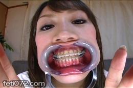 【歯列矯正 口内観察】 ワタシの口臭、嗅いでもらっていいですか?画面に向かって問いかける美女。歯には矯正器具。さらには開口器をつけて丸見えの口内粘膜フェチ映像。まるで近未来の美人アンドロイドか何かか・・・興奮しますわぁ~